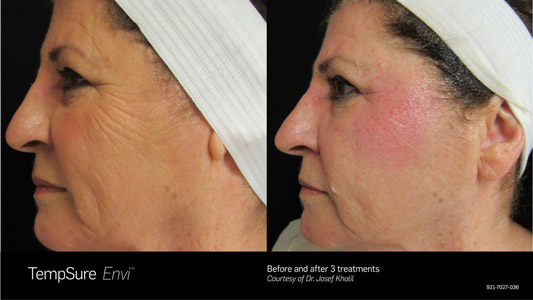 TempSure Sterling VA Before and After
